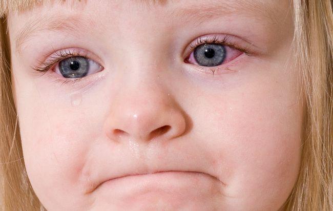 """Довольно часто синяки или """"круги под глазами"""" передаются наследственно"""