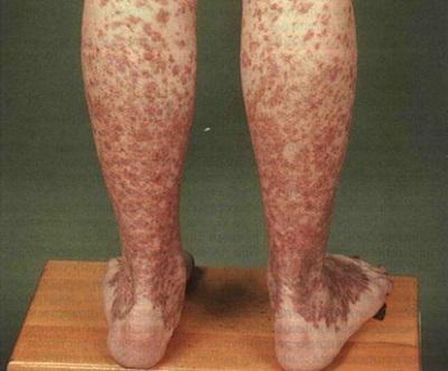 На фото показана мелкоклеточная сыпь