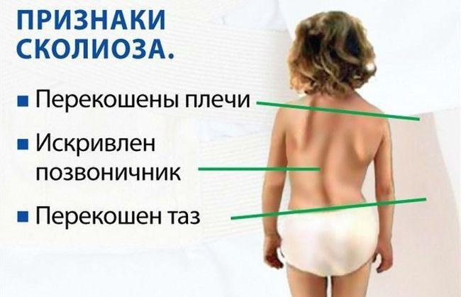 Искривленный позвоночник - один из главных признаков сколиоза