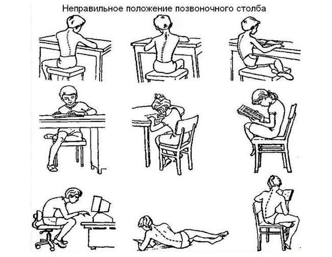 Сколиоз у детей образует из-за простых ошибок - неправильного положения позвоночного столба во время учебы и отдыха