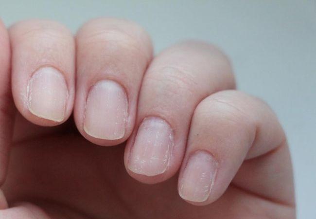Ногти слоятся из-за неправильного ухода или проблем со здоровьем