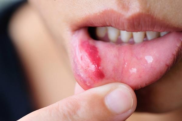 Мазь применяется в ряде случаев и в стоматологии строго по предписанию врача