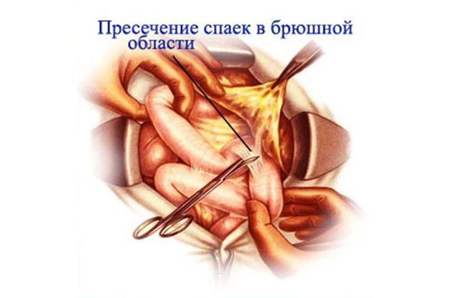 На фото показано пресечение спаек в брюшной области
