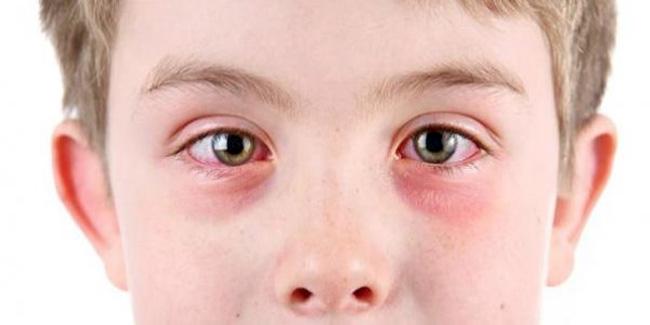 При использовании средства, следует избегать его попадания в глаза