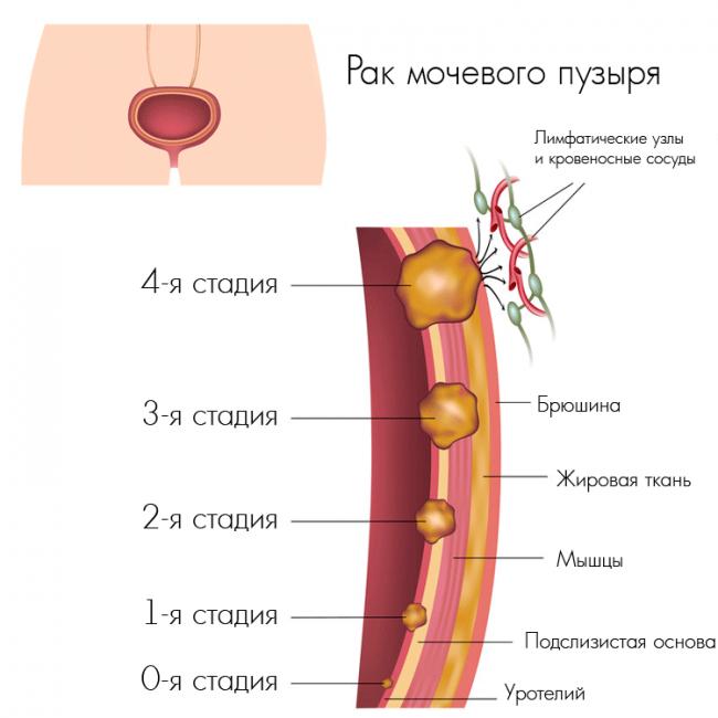 Рак мочевого пузыря у мужчин и женщин является разновидностью определенного образования. Это – опухоли, состоящие из чужеродных для нормального здоровья клеток.