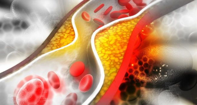 Головные боли, снижение мышечной активности, негативное воздействие на ЖКТ – «классические» постэффекты использования статинов