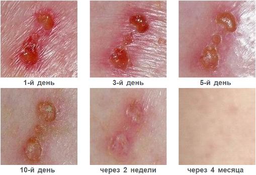 Наглядный эффект от применения мази для лечения диабетических ран
