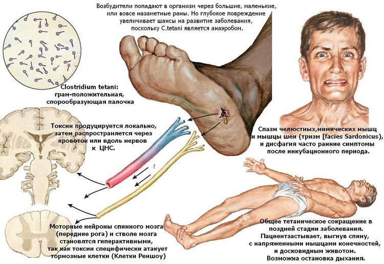 Пути проникновения и результаты деятельности возбудителя столбняка палочки Clostridium tetani
