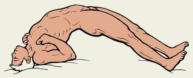Столбняк - тяжелейшее инфекционное заболевание поражающее нервную систему, может привести к необратимым осложнениям в организме, вплоть до смерти