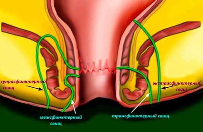Свищ заднего прохода - это образование «трубки», которая соединяет прямую кишку с близкорасположенными тканям