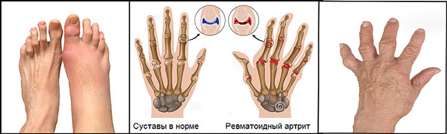 Сульфасалазин принимают при всех формах ревматоидного артрита