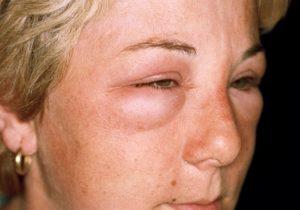 """Зодак проявляет эффективность не только при """"классических"""" видах аллергии (высыпания, ринит и прочее), но и справляется с аллергическим отеком Квинке и другими аллергическими реакциями"""