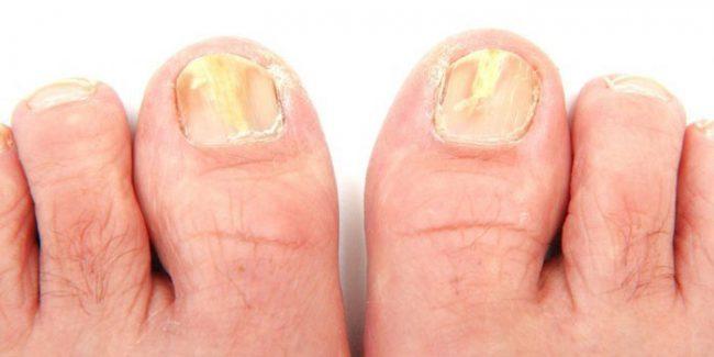 Крем Тербинафин обладает мягкой текстурой, быстро высыхает на поверхности кожи, проникает через ногтевую пластину