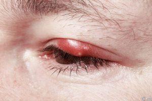 При том же ячмене применяется комплексная терапия, а не только одна мазь, но не следует забывать, что мазь без проблем попадает на глазное яблоко и ухудшает видимость, поэтому следует переждать 1-2 часа, пока все впитается