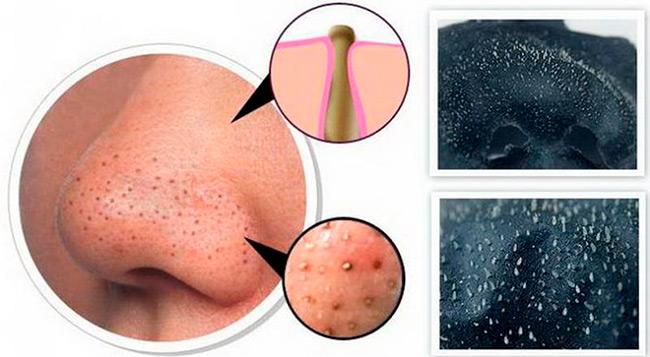 Первый шаг к здоровой и чистой коже - это устранение факторов, которые провоцируют закупоривание пор чёрными точками
