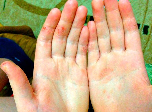 Наиболее уязвимые участки – сгибы пальцев, которые при малейшем движении и сухой стянутой коже травмируются и очень долго заживают