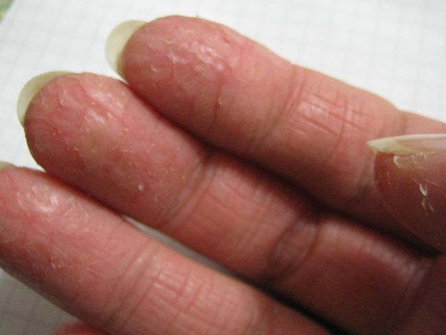 Медленно заживающие и постоянно кровоточащие ранки и трещины затрудняют выполнение ручной работы, доставляют дискомфорт, мешают нормальной жизнедеятельности человека