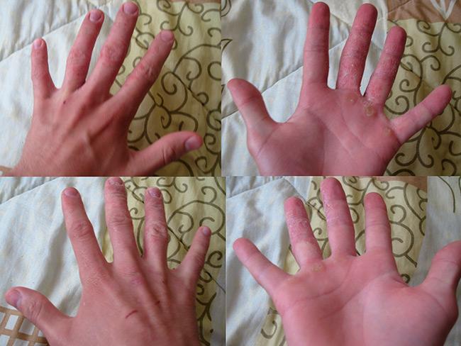 При обнаружении на коже рук трещин, нужно сразу обратиться к дерматологу, чтобы выявить причины, спровоцировавшие данную проблему и начать лечение