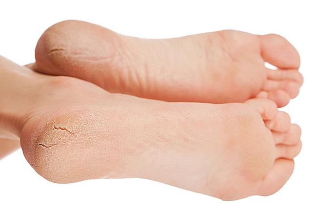 Трещины пяток – распространенное заболевание кожи, сопровождается болями, чаще возникает у людей после сорока лет, требует своевременного лечения, для избежания воспаления