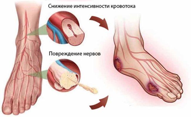 Трофические язвы - это вторичные заболевание
