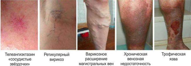 Венозная язва на ноге