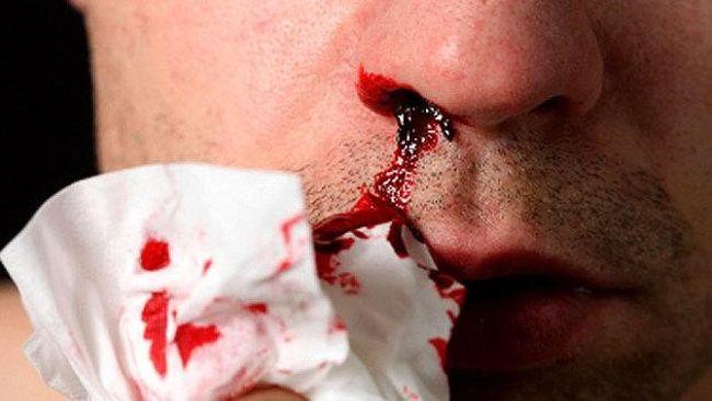 При тромбоцитопении кровь при повреждении кожных покровов останавливается очень медленно