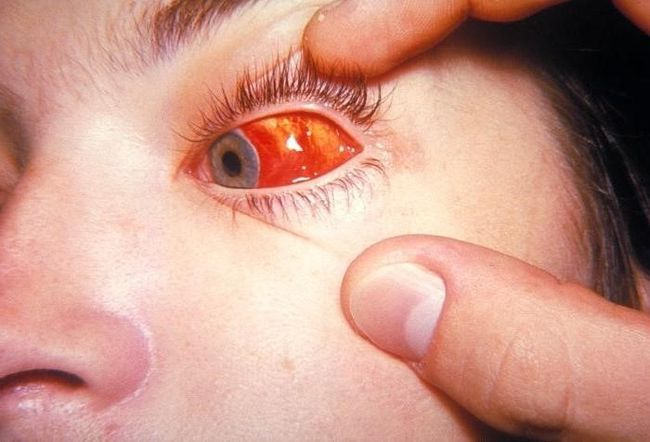 На фото явно выраженная сосудистая сетка на глазу при тромбоцитопении