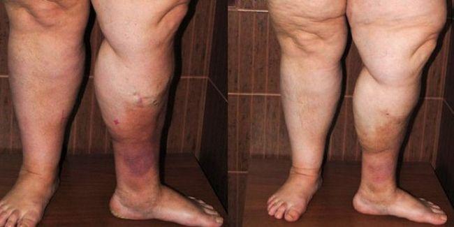 Одной из причин тромбофлебита нижних конечностей является малая физическая активность