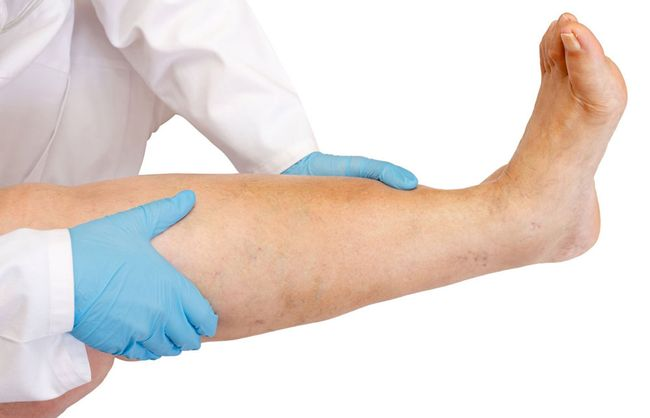 Тромбофлебит нижних конечностей можно лечить не только с помощью операции, но и медикаментами