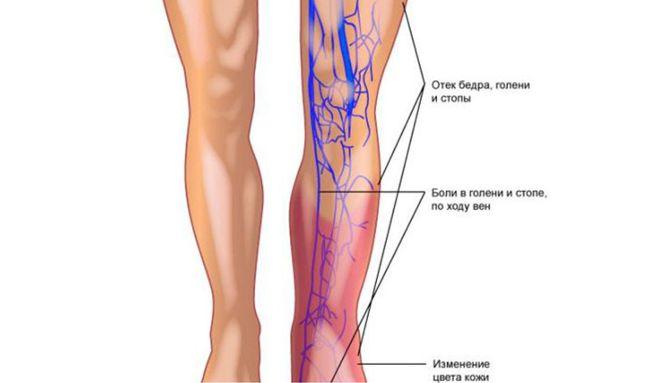 Воспалительный процесс во время тромбофлебита