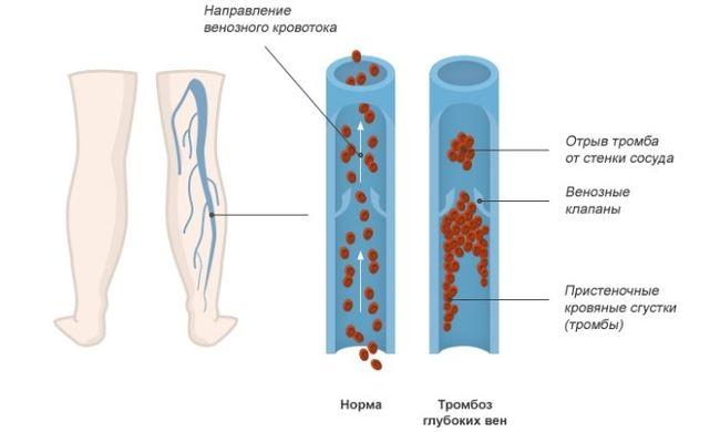 Развитие тромбоза глубоких вен нижних конечностей