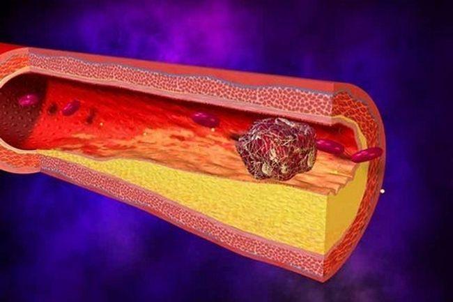 Окклюзивный тромбоз в вене