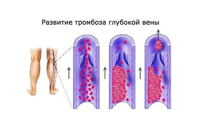 Тромбоз глубоких вен нижних конечностей может возникнуть из-за изменения сворачиваемости и густоты крови