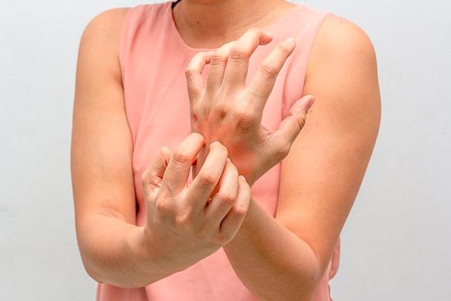 Одними из частых проблем в зимнее время являются сухость кожи и потрескивания
