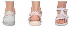 Ваш врач-ортопед сможет подобрать правильную ортопедическую обувь для лечения вальгуса у ребенка