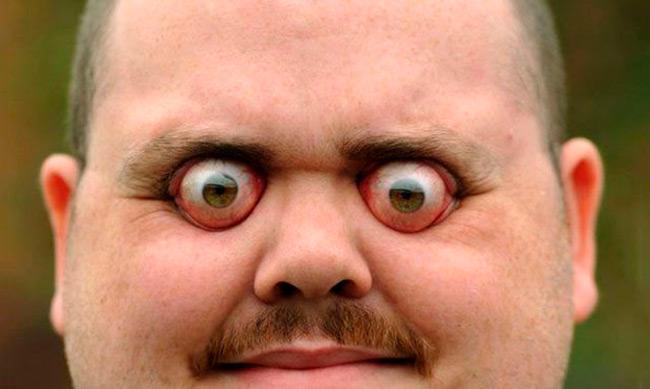 Болезнь Грейвса часто сопровождается опухшими, отекшими веками и выпученными глазами, а также двоением в глазах и потерей эластичности кожи верхнего века