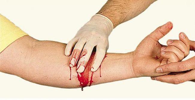 Для того, чтобы остановить венозное кровотечение, необходимо пережать вену