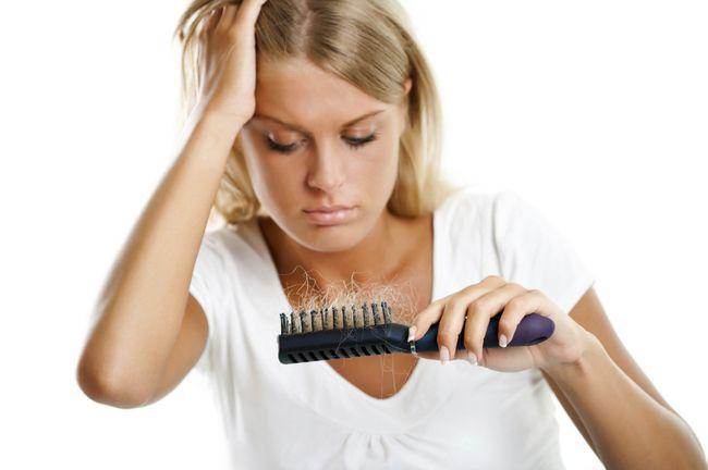 Выпадение волос - это естественный процесс, который происходит у каждого человека. Однако если количество выпавших в день волос превышает 100, следует забеспокоиться о состоянии организма