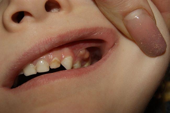 На фото показано как выглядит свищ на левой наружной десне у ребёнка - это опасное патологическое состояние.