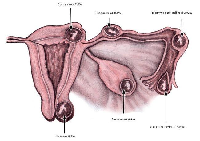 При внематочной беременности эмбрион развиваться за пределами матки