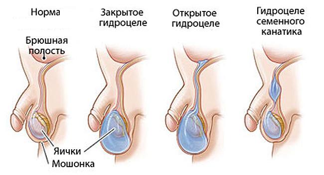 Водянка яичка у мальчиков – норма (слева) и виды патологий