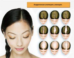 Стадии проявления андрогенной алопеции у женщин