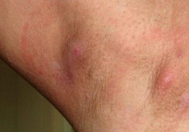 Так выглядит воспаление лимфатических узлов под мышкой, как на фото примере.