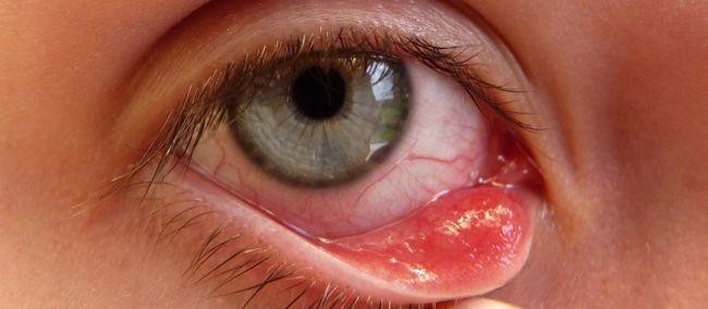 Воспаление фолликул ресницы или сальной железы называют ячмень