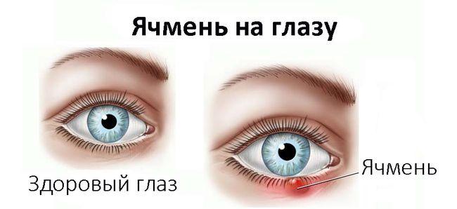 Как проявляется ячмень на глазу? На фото здоровый глаз и глаз с ячменем
