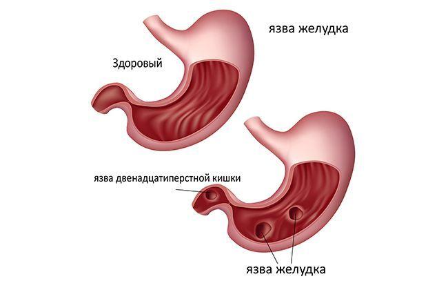При подозрении на язву желудка или двенадцатиперстной кишки, необходимо срочно обратиться к врачу