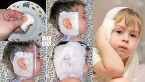 Схема правильного наложения повязки на ухо ребенку