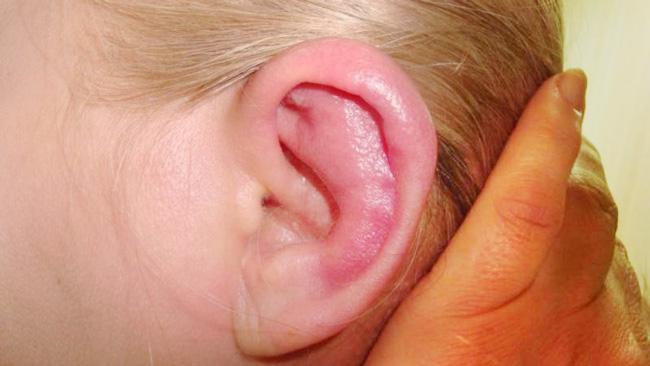 Препарат может вызвать побочные эффекты в виде покраснения и возникновения раздражения вокруг уха, после прекращения приема препарата, симптомы проходят