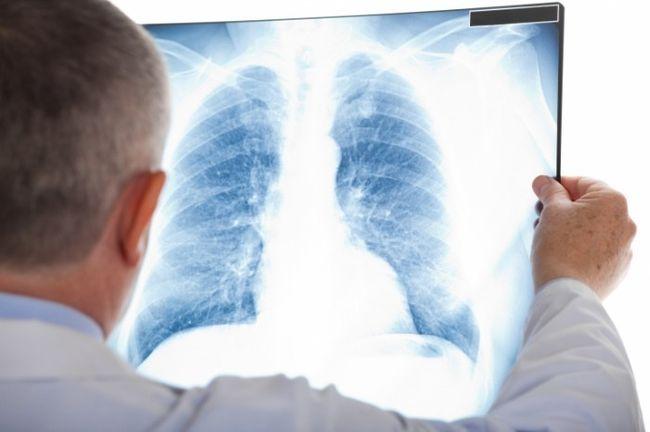 Специалисты для диагностики саркомы Юинга назначают рентген и ряд анализов