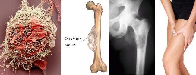 Саркома Юинга поражает нижние участки трубчатых костей, костные ткани ребер, позвоночника, лопаток, ключиц и кости таза